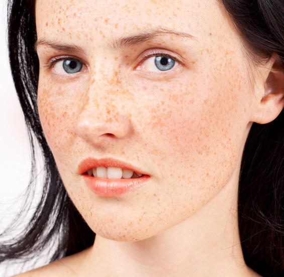 7 Ways to Treat Teen Acne